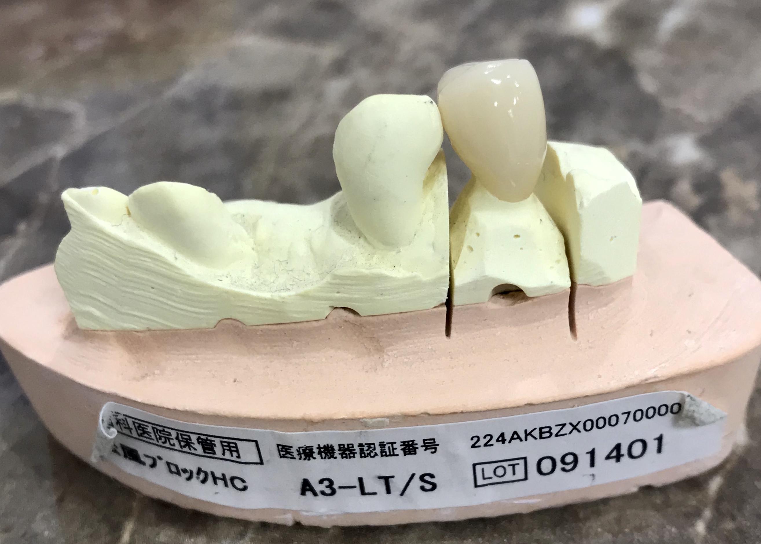 小臼歯、CADCAM冠