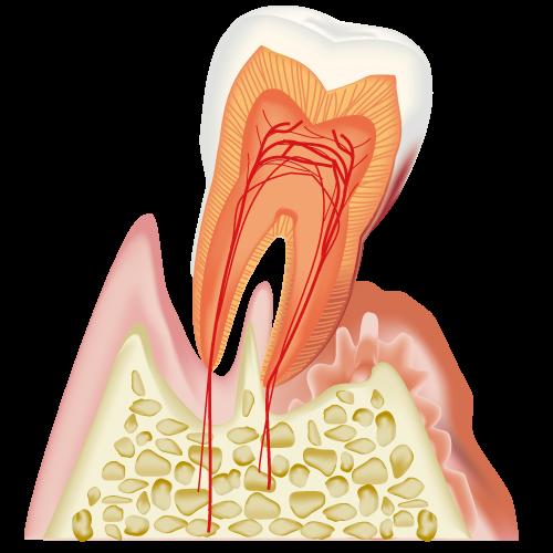 歯周病の末期